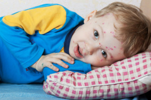 varicella bambini